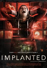 Implanted-Seyret